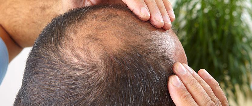 Hur går en hårtransplantation till?